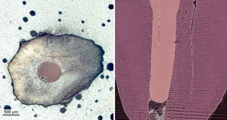 Появление микротрещин в процессе лечения корневого канала