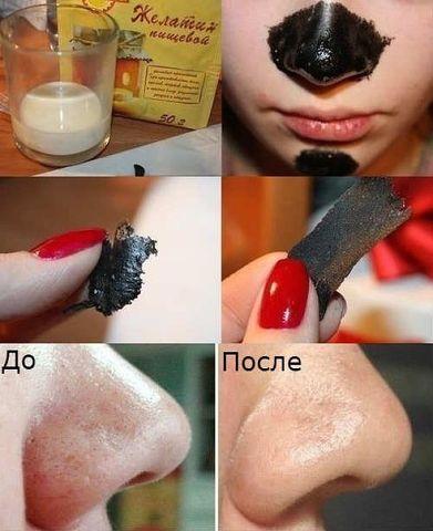 Как сделать маску от черных точек в домашних условиях