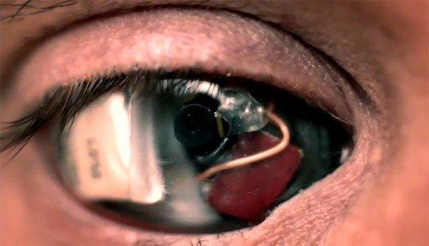 В США слепому мужчине восстановили зрение с помощью бионического глаза