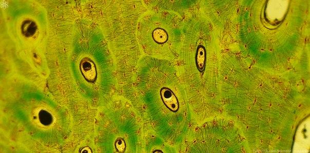 На обновление одной клетки костной ткани уходит 6 - 7 месяцев