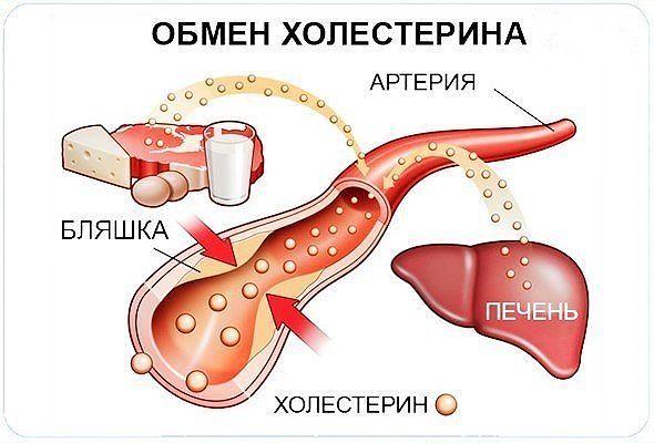 Уровень холестерина можно снизить без проблем
