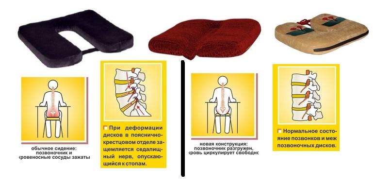 Сбор заказов. Профилактические накладки на стулья, автомобильные сидения Селиванова - реальная помощь позвононику. Ваше