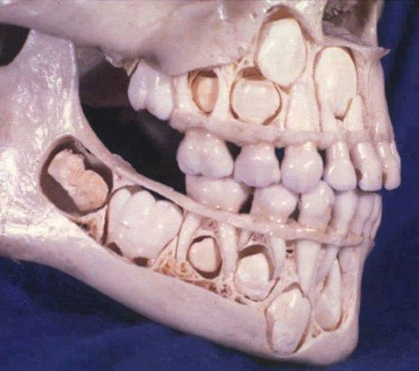 Детский череп перед потерей молочных зубов