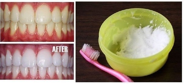 КАК ОТБЕЛИТЬ ЗУБЫ? Только не отбеливающая зубная паста!