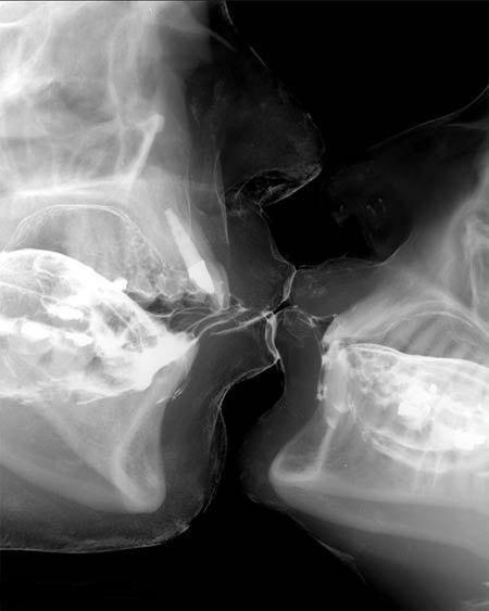 Рентгеновский снимок поцелуя.