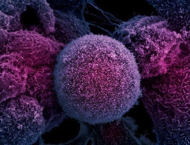 Клетка раковой опухоли простаты