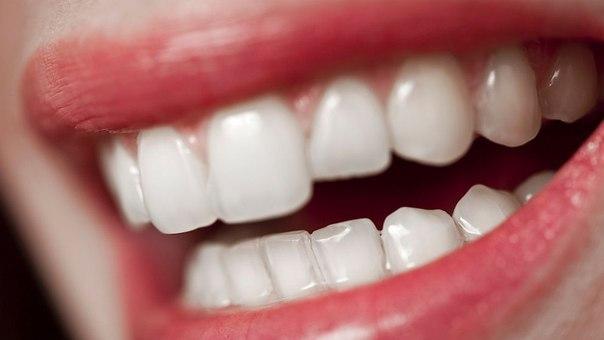 Учёные наделили зубные имплантаты антибактериальными свойствами.