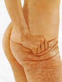 Антицеллюлитная программа( Ручной массаж,Вакуумными баночками ,медовый массаж)+Обертывание.