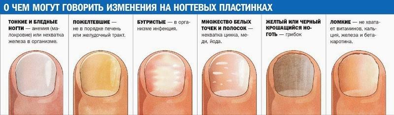 Про ногти