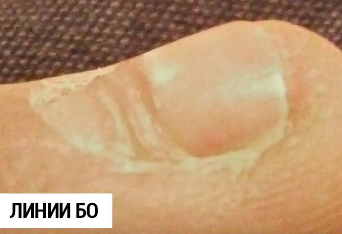 Какие тайны могут скрывать твои ногти