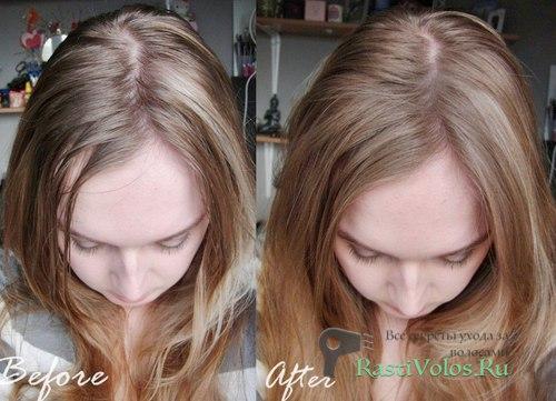 Вреден ли сухой шампунь для волос?