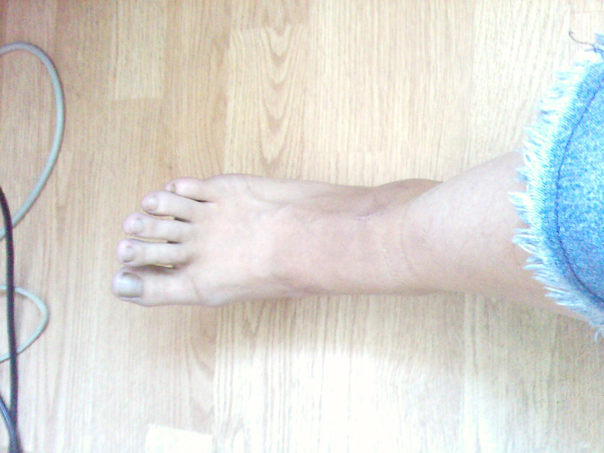 Фото ног женских волосатых 6 фотография