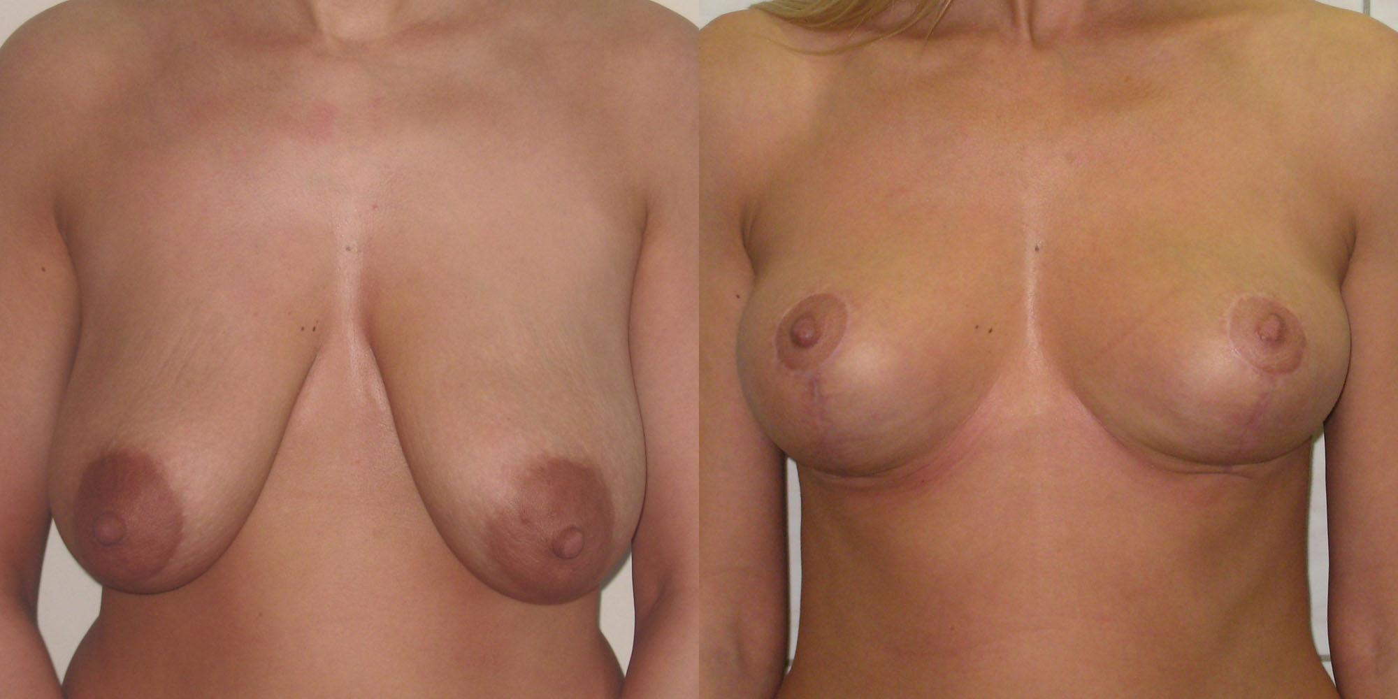 Фото различных форм груди женщин 13 фотография