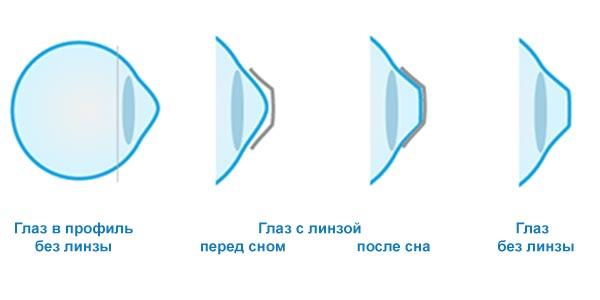Как делается операция на глаза дальнозоркость