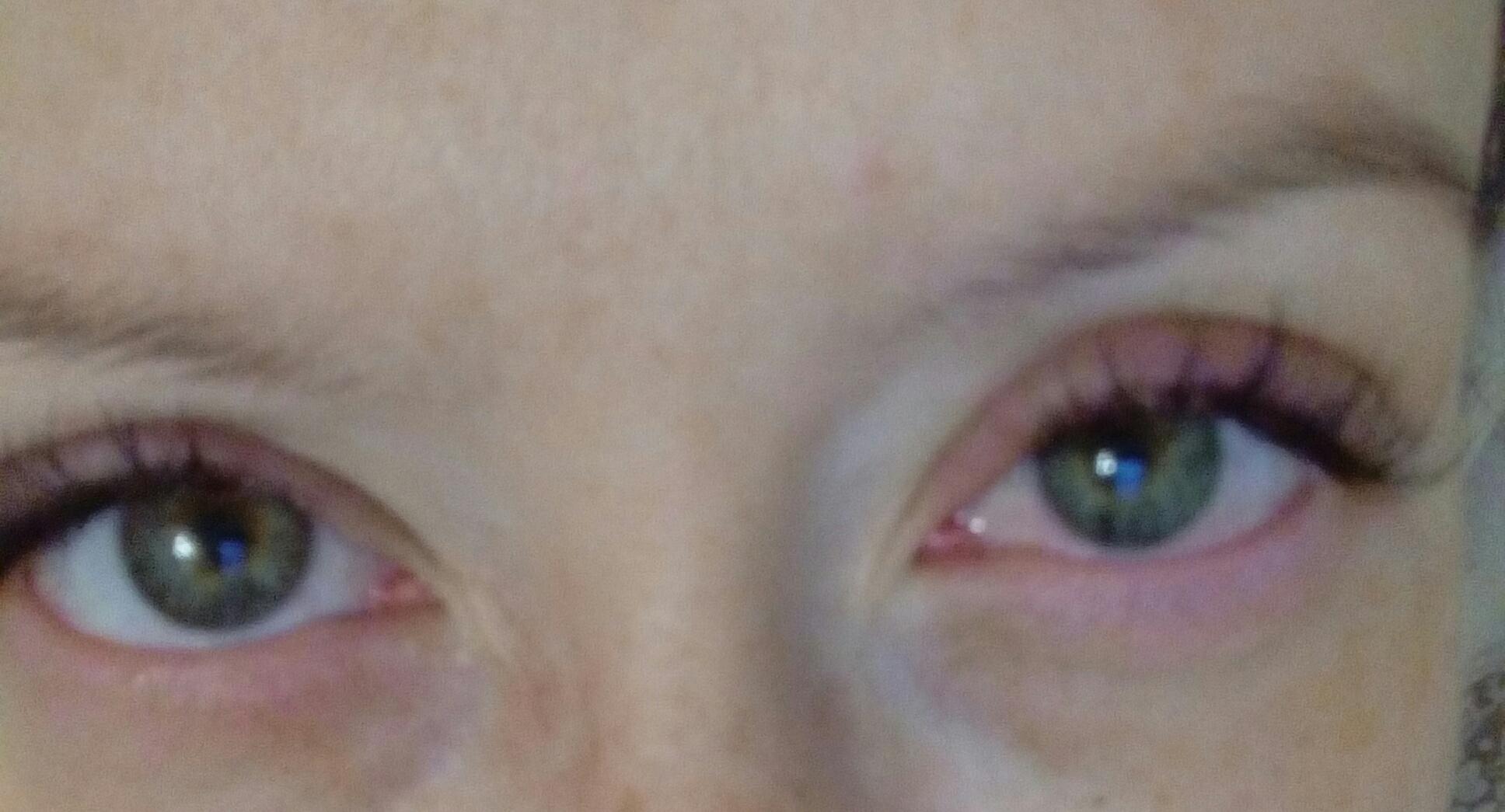 Аллергия нарощенные ресницы фото до и после