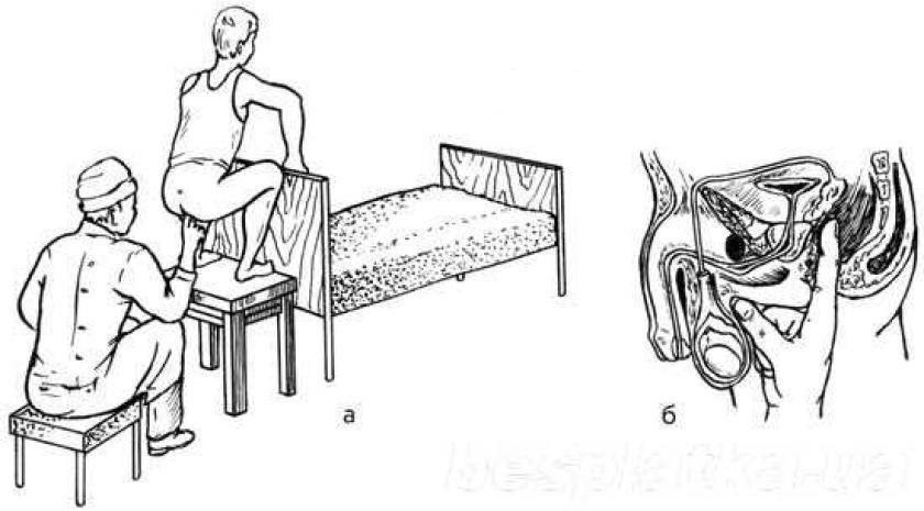 Как массаж делать простатита антибиотики для лечения острый простатит